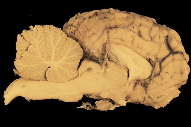 brain, horse, section, anatomy, preparation, cerebellum