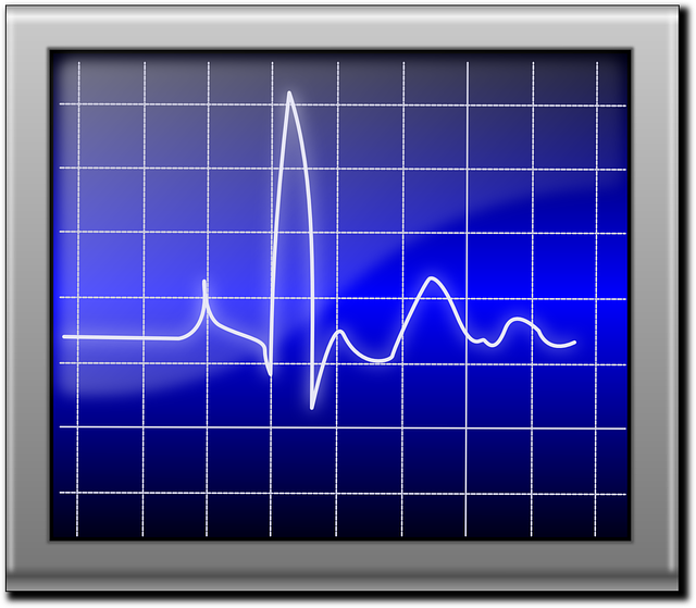 pulse, heartbeat, pulsation, beat, ekg, display